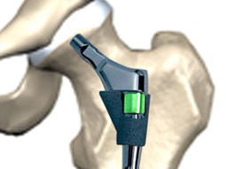 LPB Protected Hip Prosthesis
